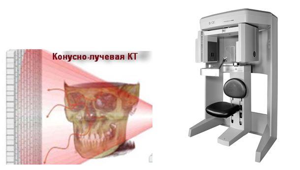 Внешний вид конусно-лучевого компьютерного томографа и его рентген луча.