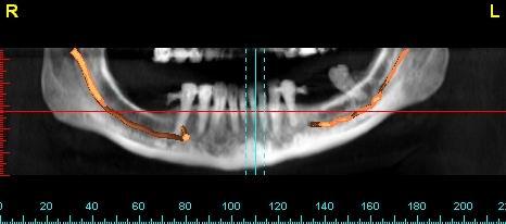 Смоделированный левый нижнеальвеолярный нерв