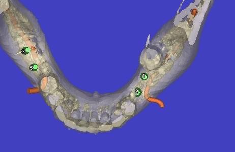 3D модель нижней челюсти пациентки и смоделированный нижнеальвеолярный нерв