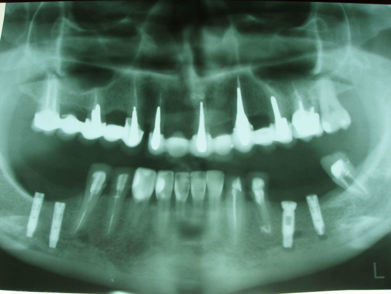 Ортопантомограмма – «иллюзия»