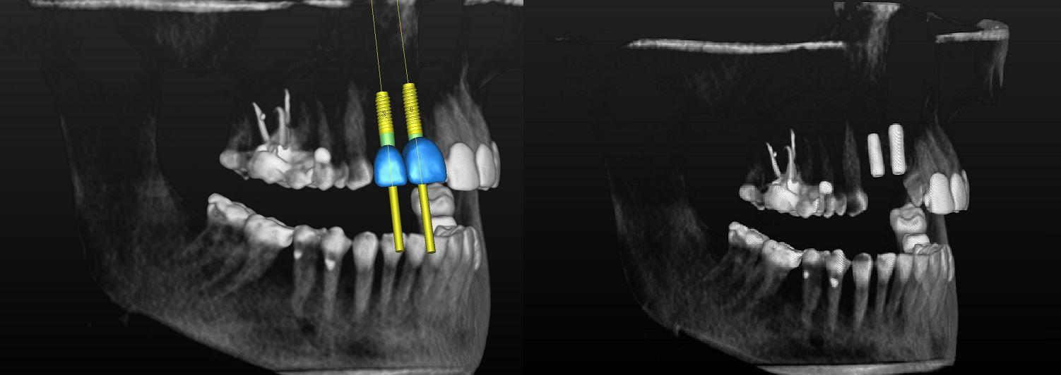 3D реконструкция данных КЛКТ с планом имплантации