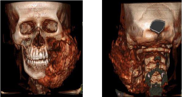 3d-реконструкция остеосаркомы