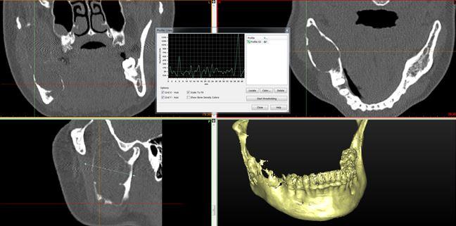 КТ свидетельствует об объемном образовании нижней челюсти