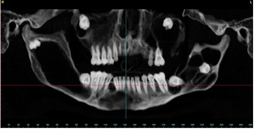 Панорамный снимок пациента