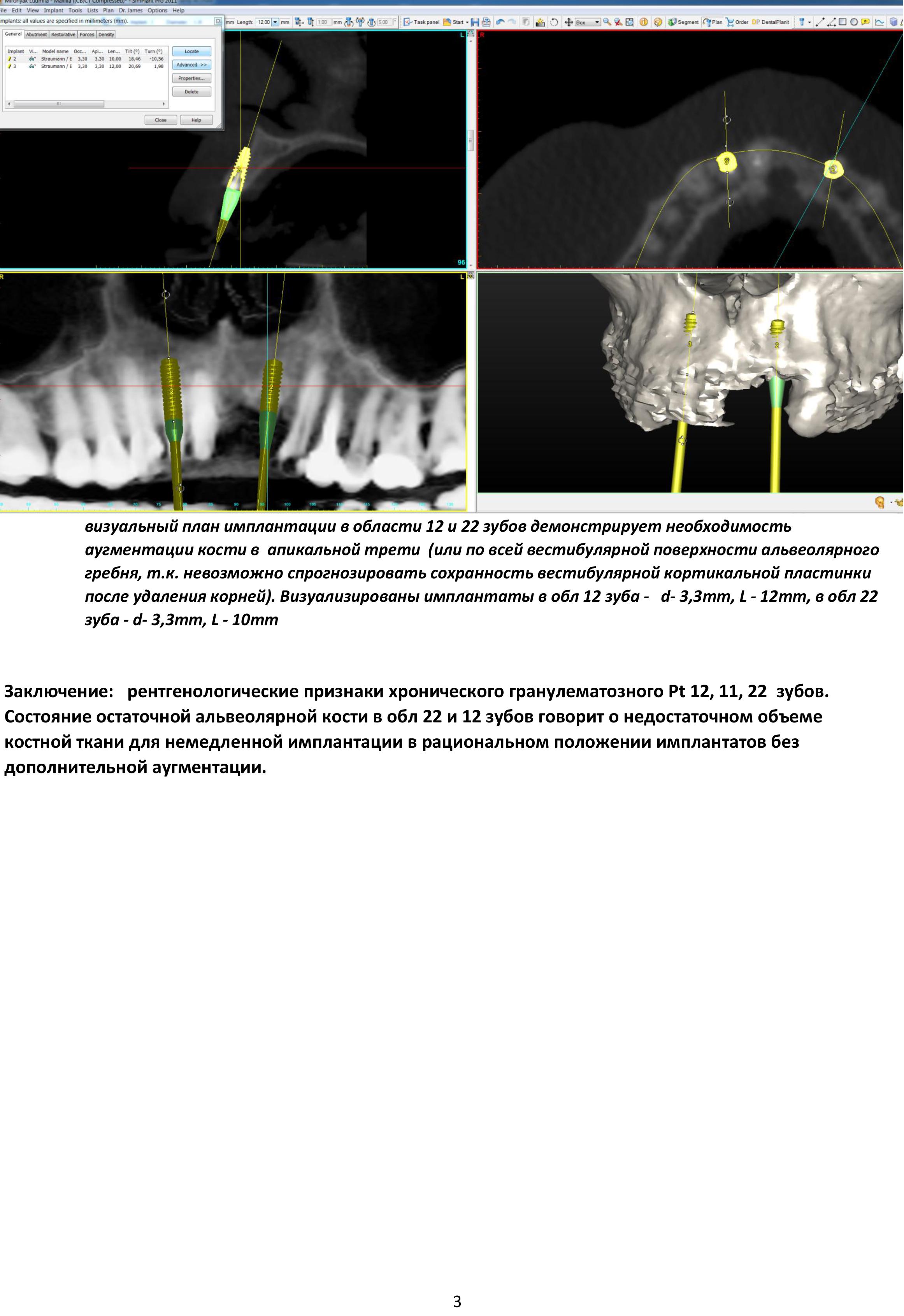 рентгензаключение с целью планирования имплантации