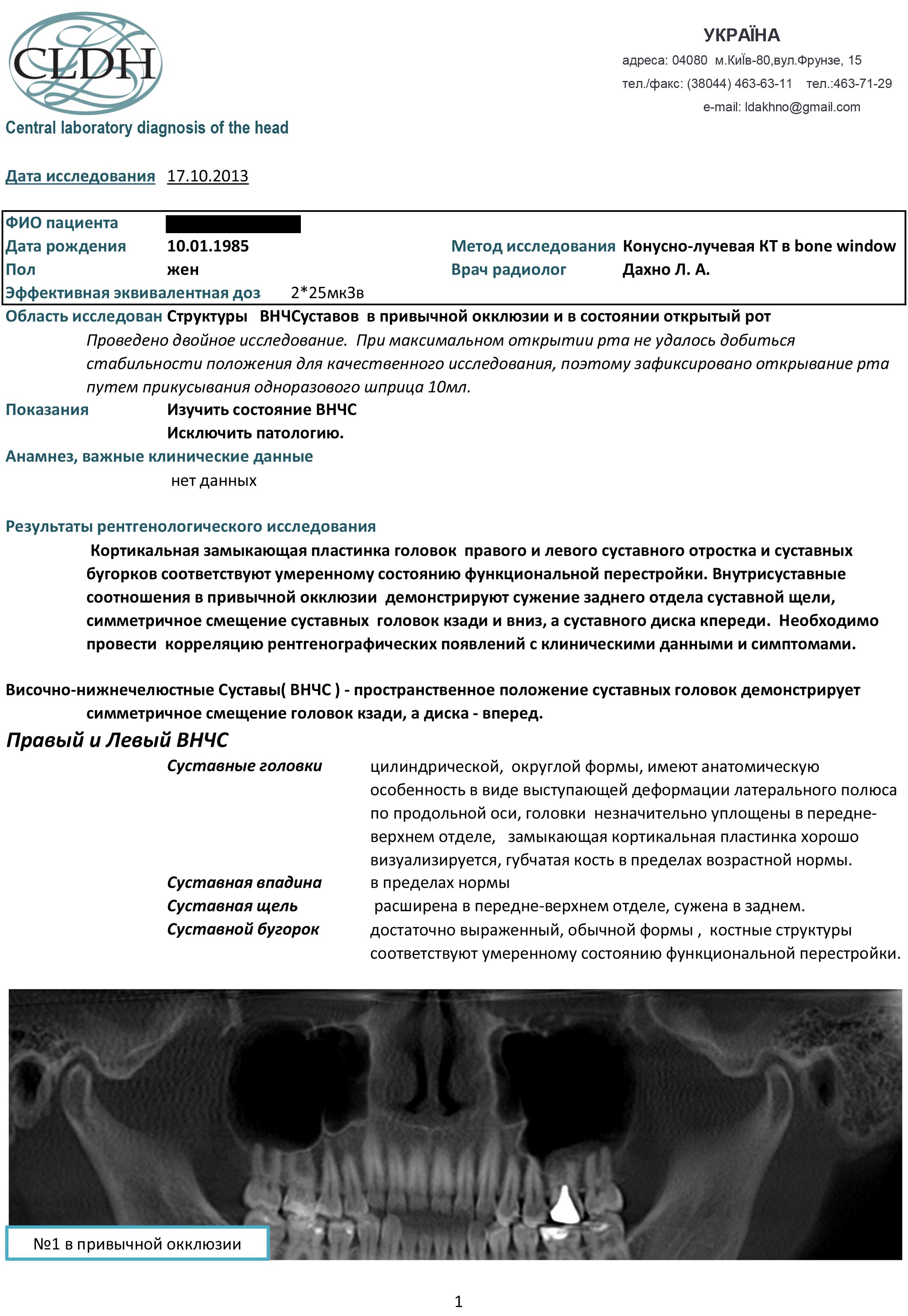 Рентгензаключения Суставы2