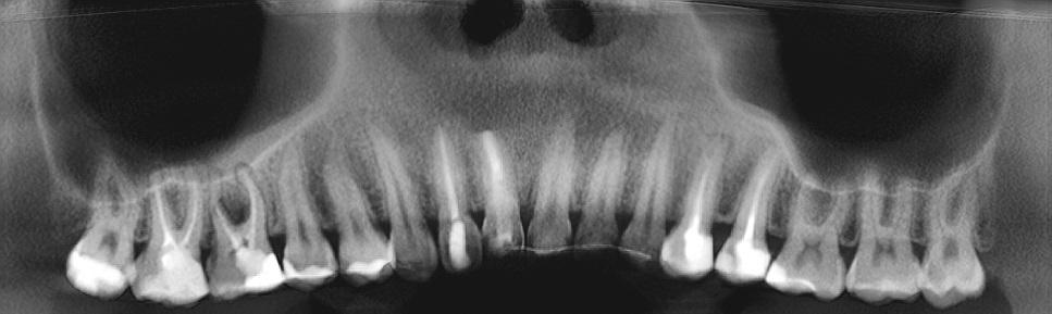 Ортопантомографическая реконструкция верхней челюсти по щечным корням моляров