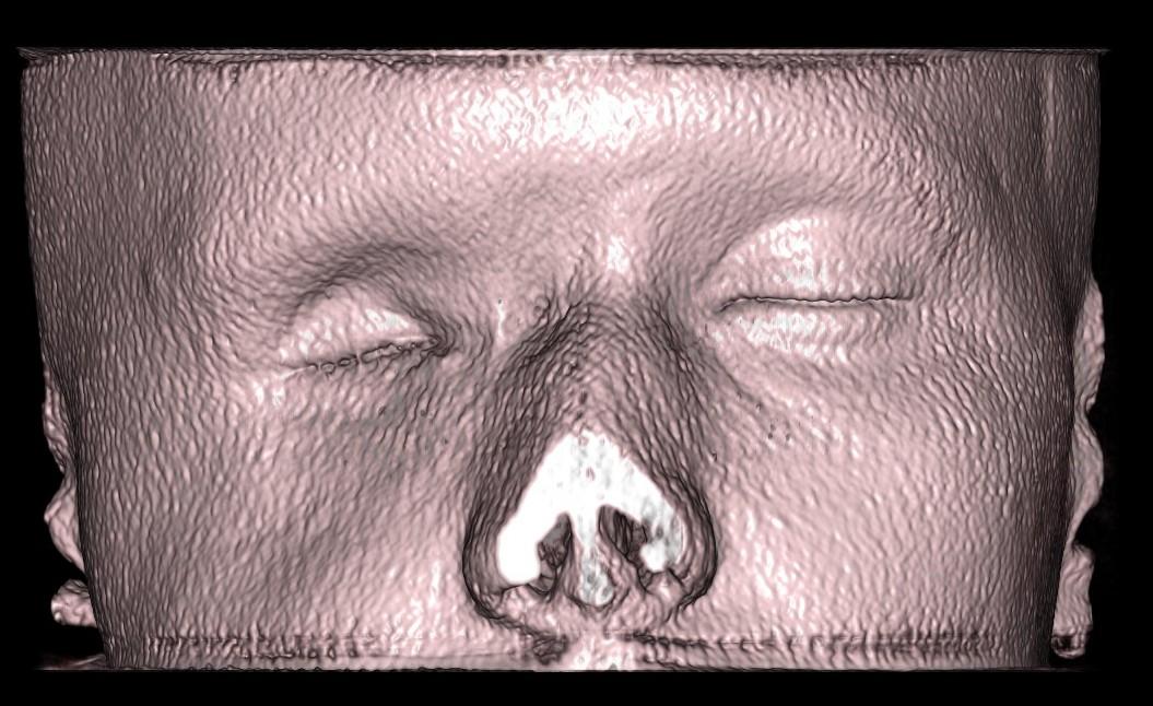 Мягкотканная 3Д визуализация