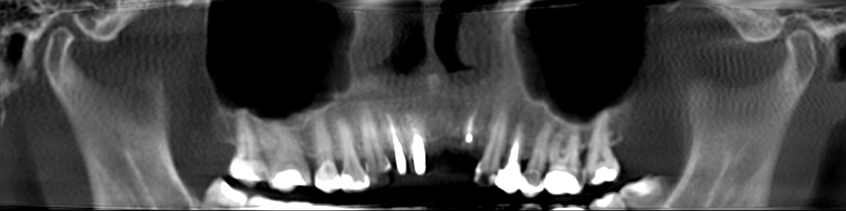Ортопантомографическая суммационная реконструкция верхней челюсти