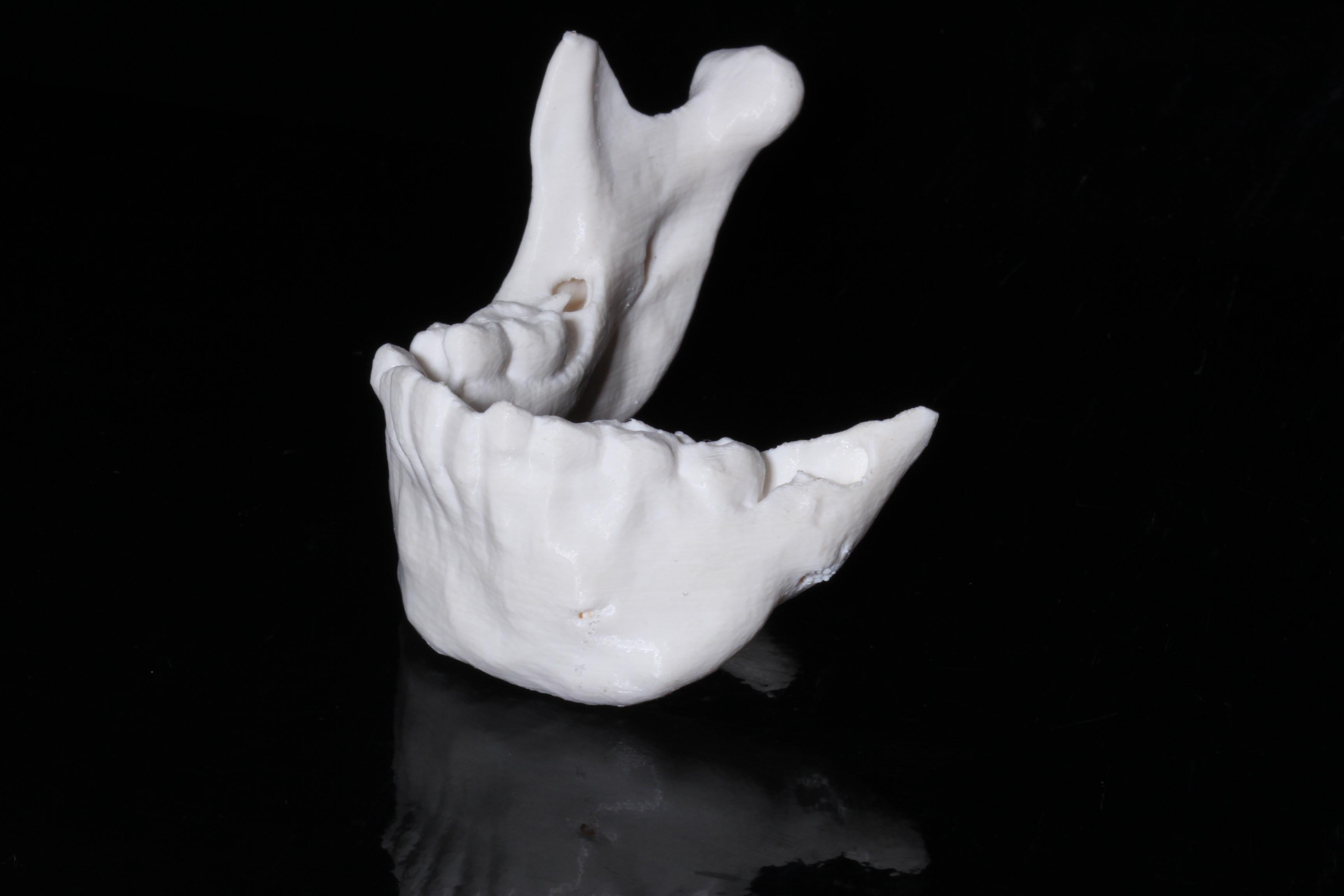 Надрукована 3D модель нижньої щелепи дитини