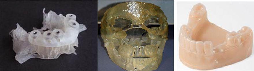 3D печать черепно-челюстно-лицевой области