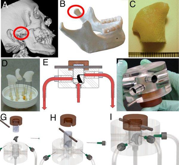 Рис.1. Процесс получения фрагмента нижнечелюстной кости из мезенхимальных клеток костного мозга пациента.