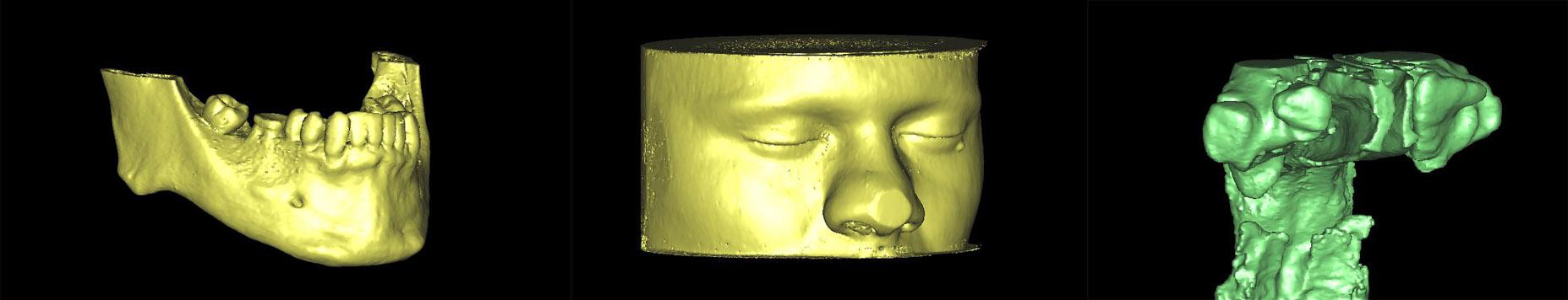 3D снимкок областей с разной плотностью