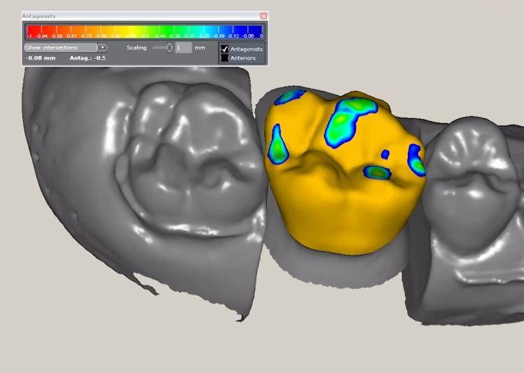 Участок отсканированный 3D сканером