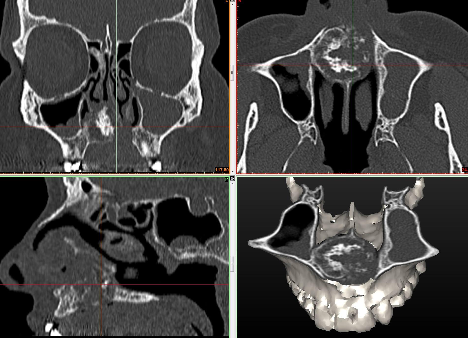 Реконструкция и сегментация опухоли хондромы