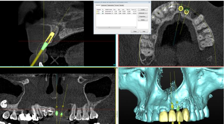 Конусно лучевая компьютерная томография цена