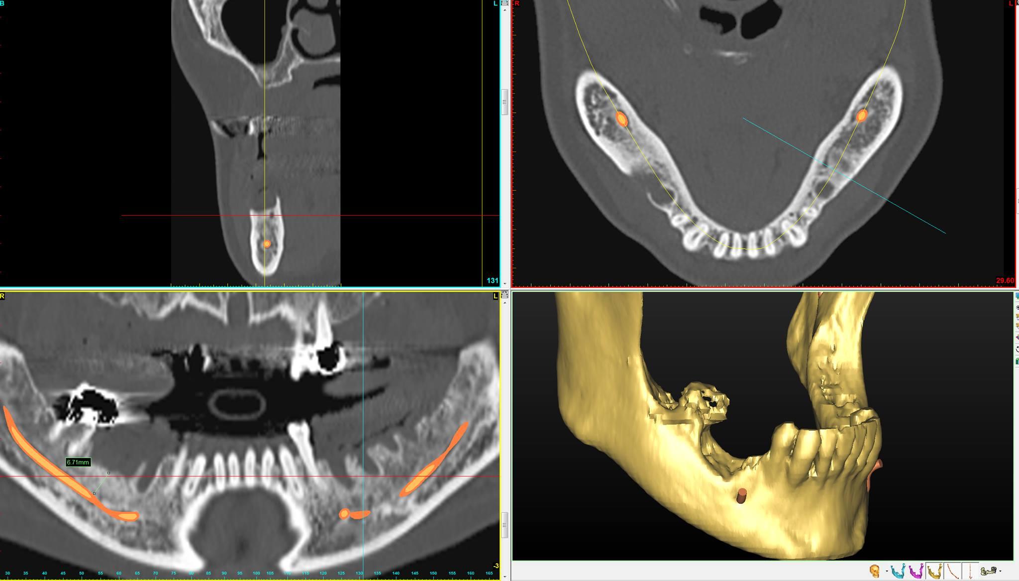 Виртуальная модель нижней челюсти