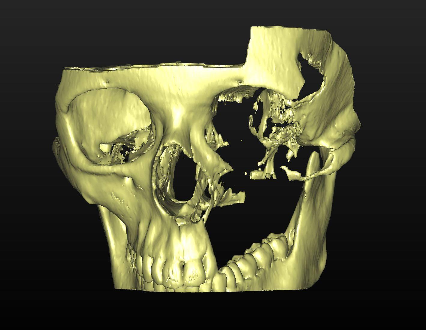 3D модель черепа с реконструкцией и сегментацией