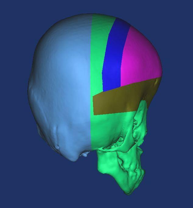 3D изображение черепа