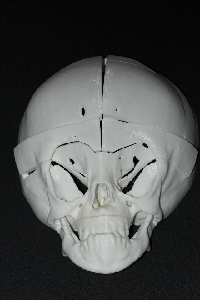 напечатанный 3D принтером череп