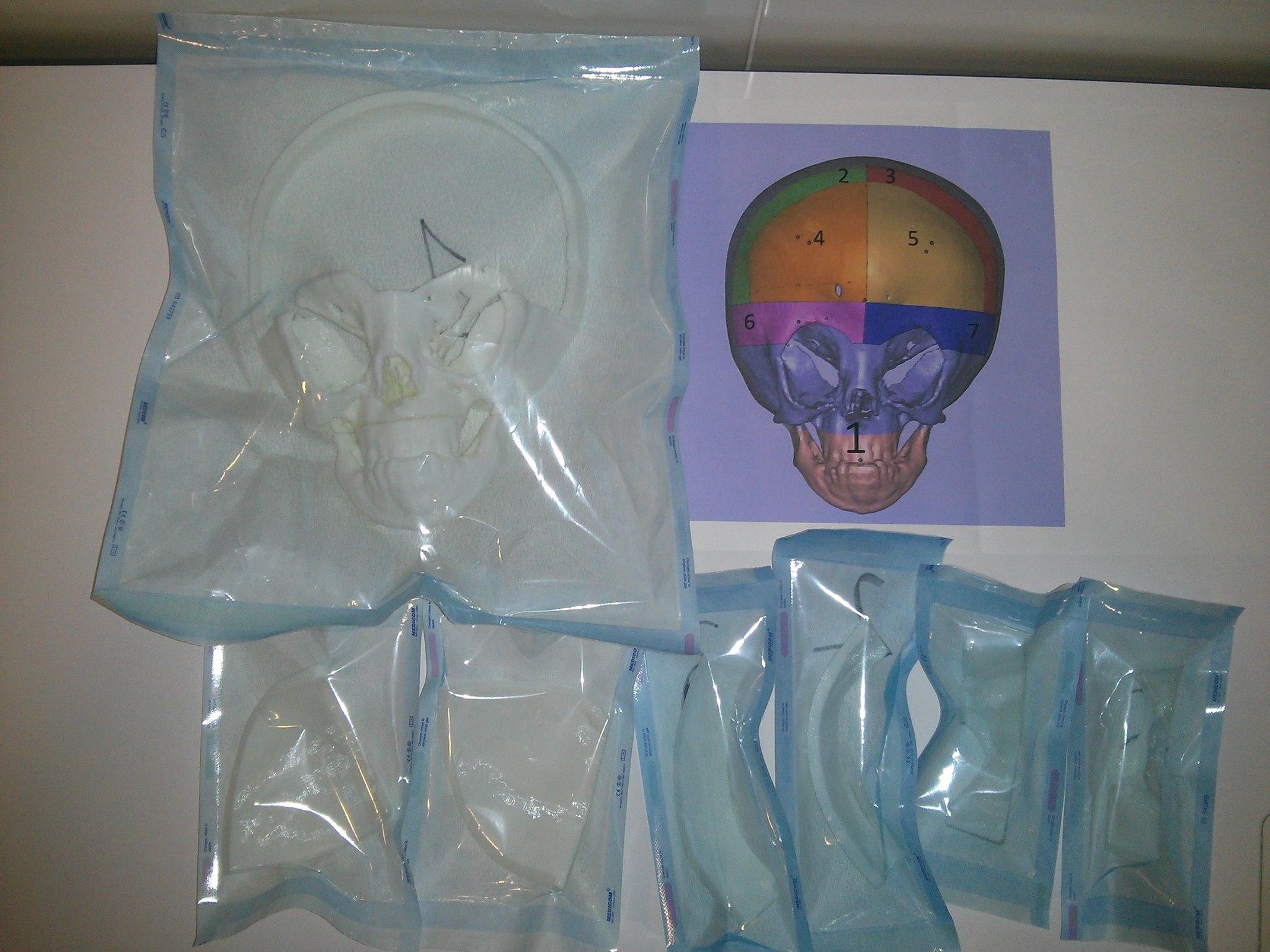 Напечатанные на 3D принтере части черепа