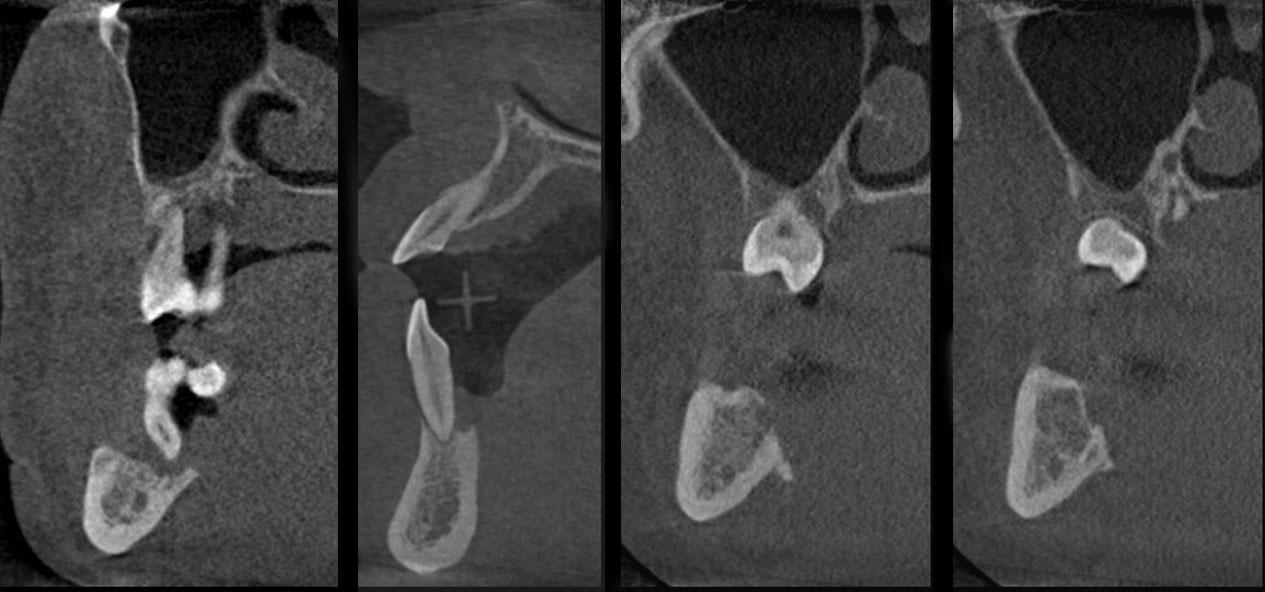 компьютерная томография эозинофильной гранулемы