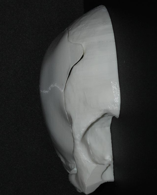 3D модель черепа с имплантом