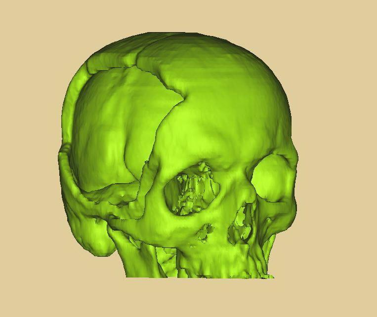3D модель черепа с ЧМТ