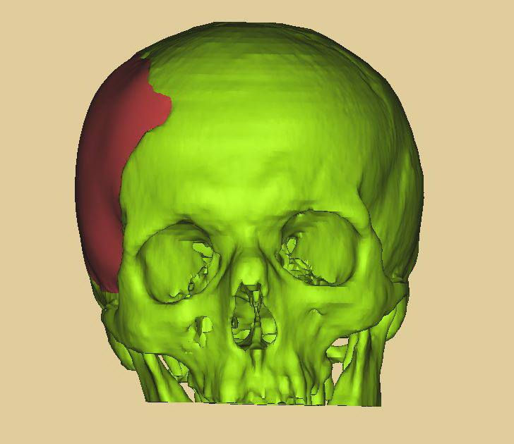 3D модель черепа с реконструкцией