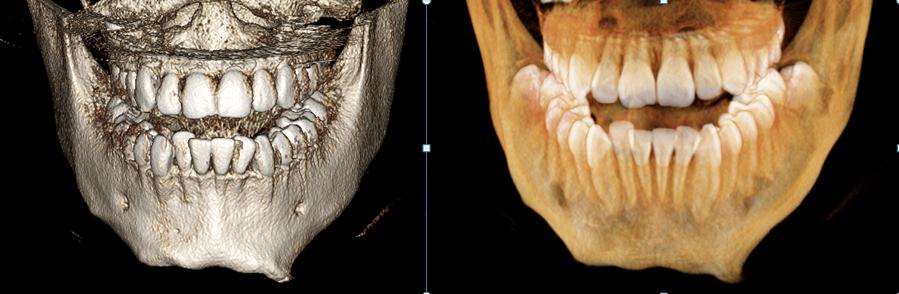 КЛКТ нижней челюсти с трехмерным моделированием