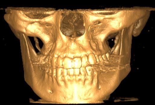 """3D снимок черепа пациентки с синдромом """"молчащего"""" синуса"""