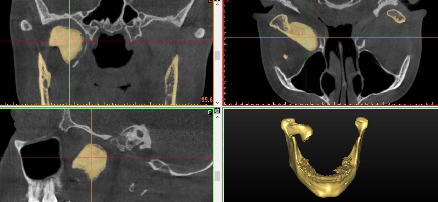 остеома мыщелкового отростка