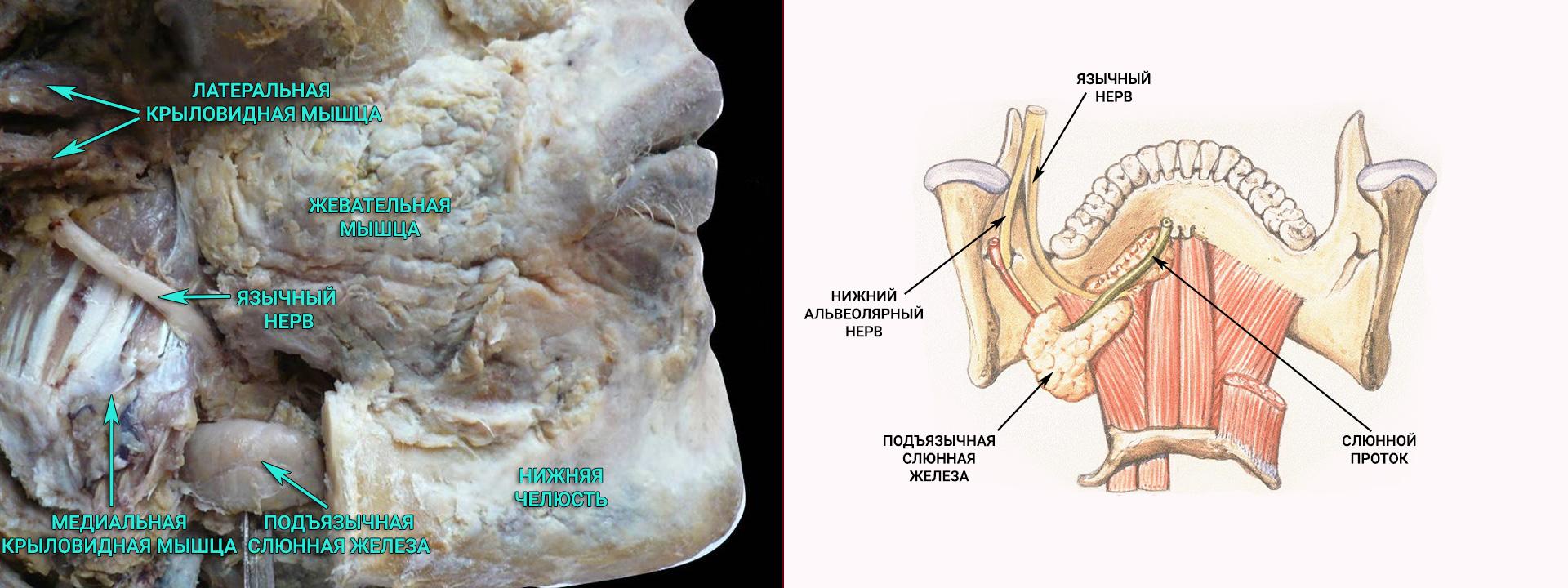Ход язычного нерва и нижнеальвеолярного нерва. Вид сзади